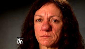 Из-за болезни нос женщины вырос до гигантских размеров