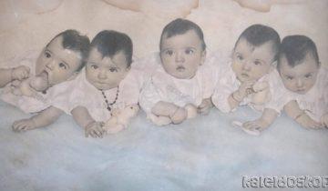 Жизнь за стеклом: трагическая судьба самых знаменитых сестер-близнецов