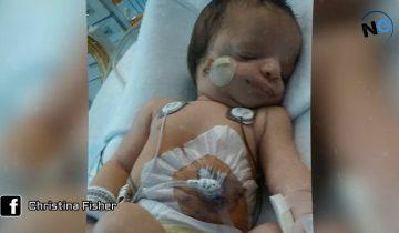 Увидев лицо этой малышки, приемная мама бросила ее в больнице