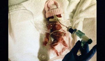 Эта малышка родилась на 3 месяца раньше срока (7 фото)