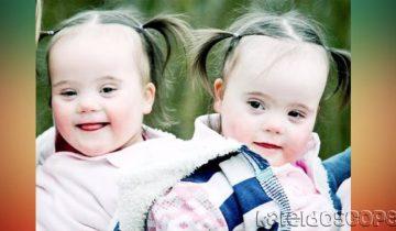 Очаровательные близняшки с синдромом Дауна