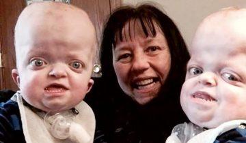 Медсестра влюбилась в этих деток с генетическими отклонениями