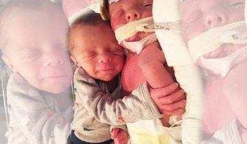 За трогательной фотографией близнецов скрывается трагедия
