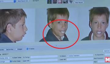 Мальчик родился со странными зубами, а в итоге перевернул мир многих людей