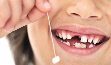Когда папа — круче стоматолога: вьетнамец удалил ребенку зуб… арбалетом