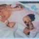 70% кожи новорожденной были покрыты родимыми пятнами
