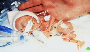 Семь самых крохотных младенцев на свете