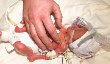 Когда она родилась, то была размером с папину ладошку. Спасибо докторам за спасение этой крохи!