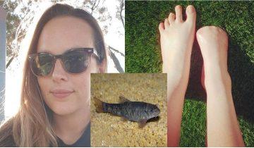 Девушка лишилась пальцев на ноге после пилинга рыбками в Таиланде