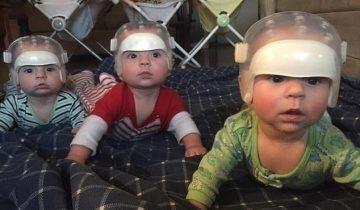 Один шанс на 500 триллионов: почему эти тройняшки носят специальные шлемы?